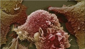 Cancer-Cells-Under-Microscope1